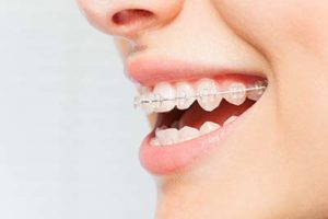 person smiling wanting ceramic braces