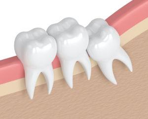 diagram of impacted teeth